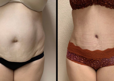 Before and After Tummy Tuck in Gilbert, AZ