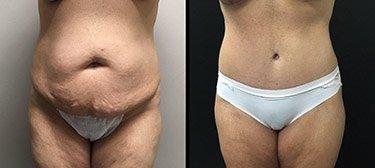 Tummy Tuck in Phoenix AZ | Gilbert Abdominoplasty plastic surgeon