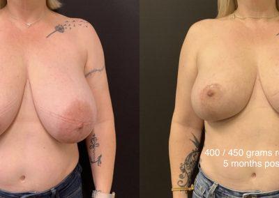 Beautiful Breast Reduction Gilbert Arizona